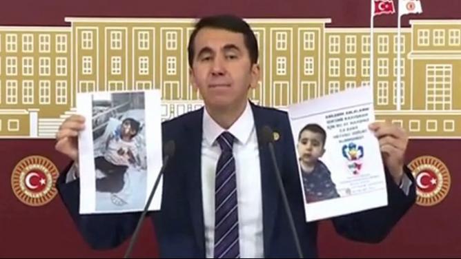 Milletvekili Topal  SMA Hastası Yiğit Bebeğe Destek İstedi