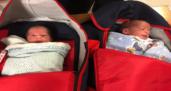Suriyeli ikizler Türkiye'de şifa buldu